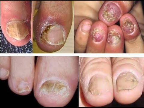 Bệnh nấm móng tay, chân là gì?