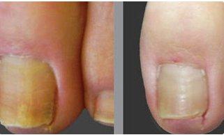 Trước và sau chữa bệnh nấm ngón chân